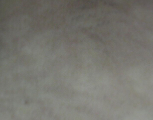 武汉哪个医院看白癜风好?影响白斑专业治疗的因素是什么