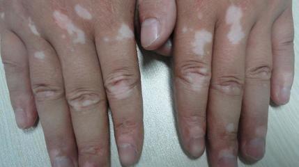 武汉手部患白斑对患者有什么影响?