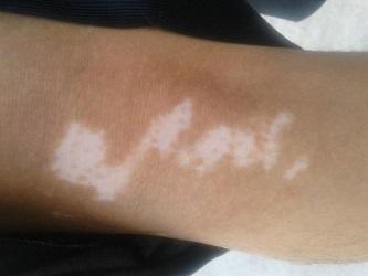 武汉治白斑的三甲医院?手臂患了白斑要怎么治才好?