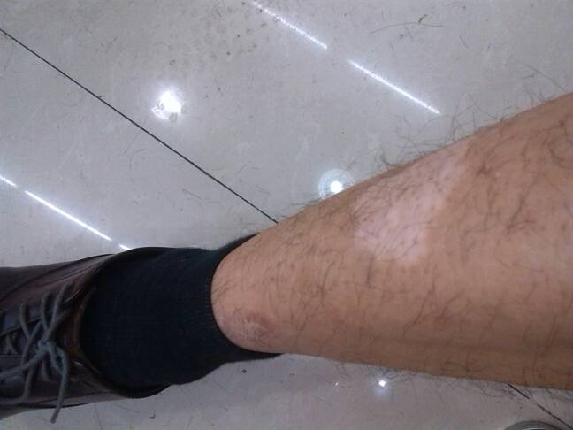 武汉哪家医院看白癜风好?武汉治疗腿部白癜风如何迅速治疗呢?